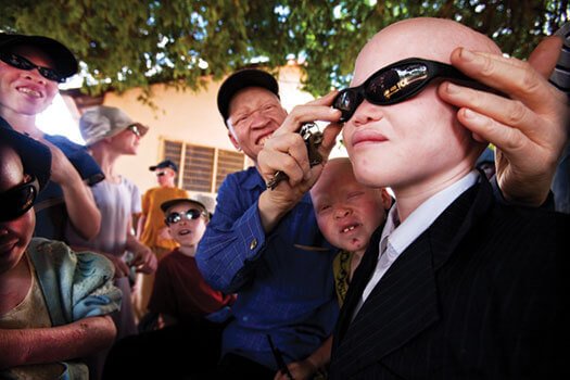 problem facing albino